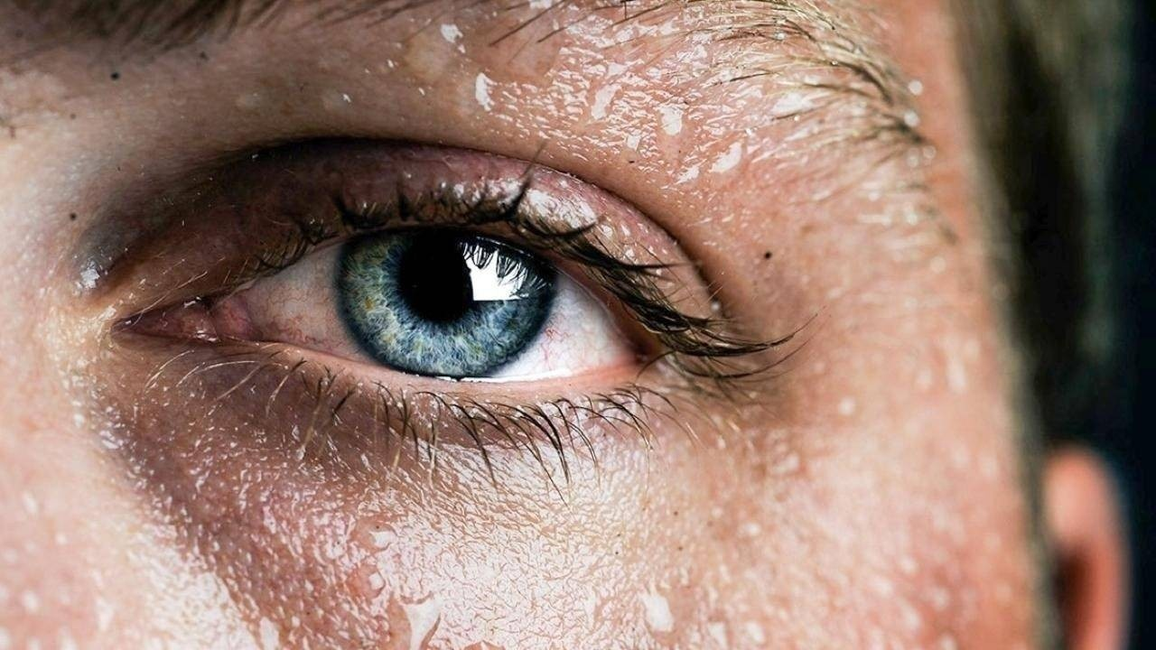 Eye surrounded by sweat