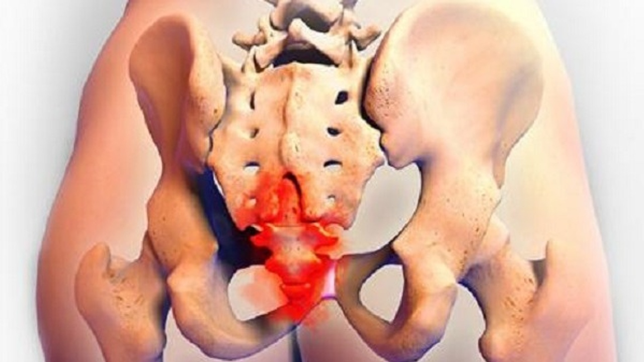 Bruised Coccyx