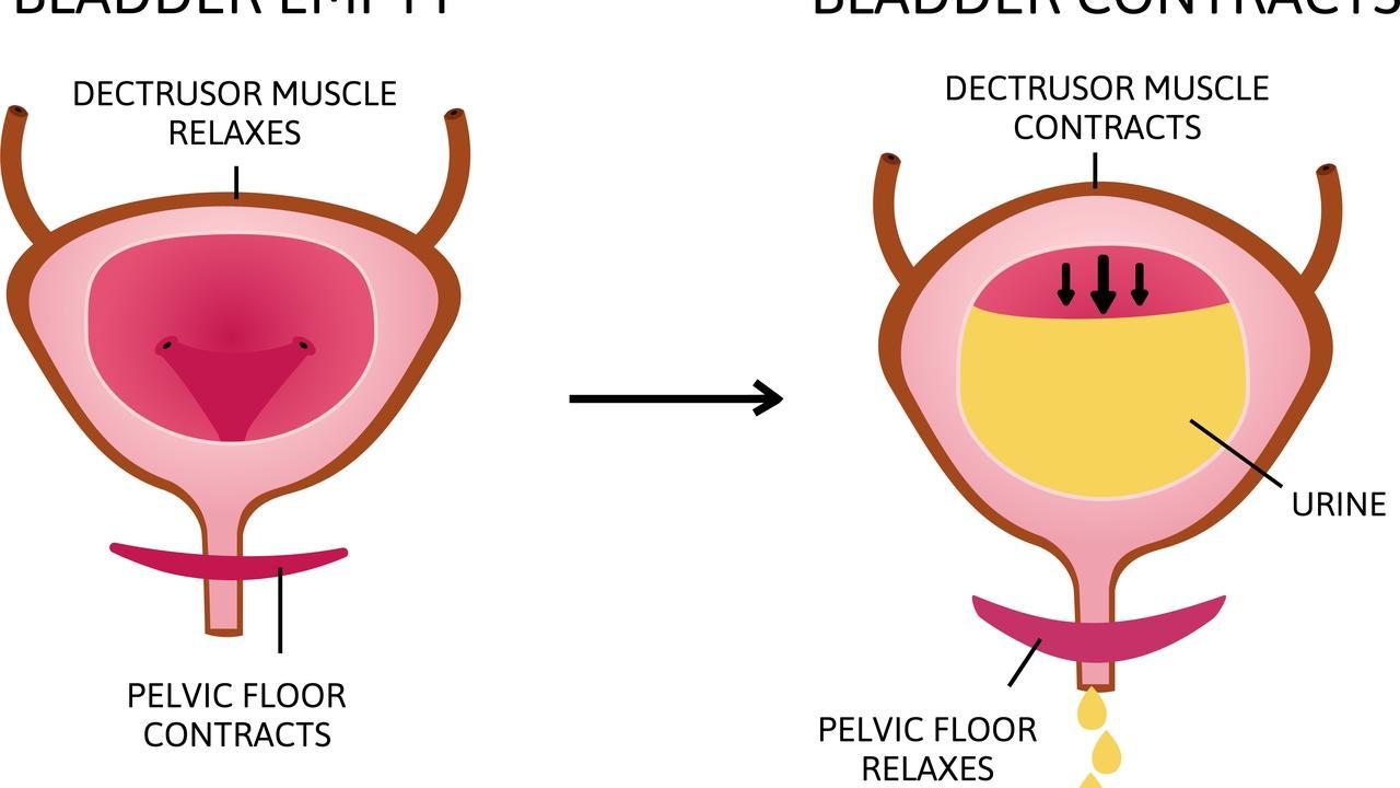 Effective Kegel Exercises for Incontinence