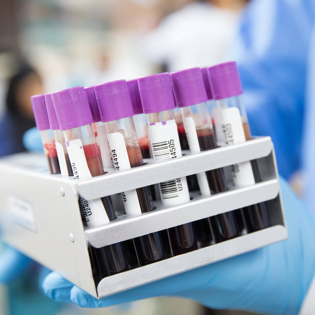 Doctors need to check your blood to test for anemia.