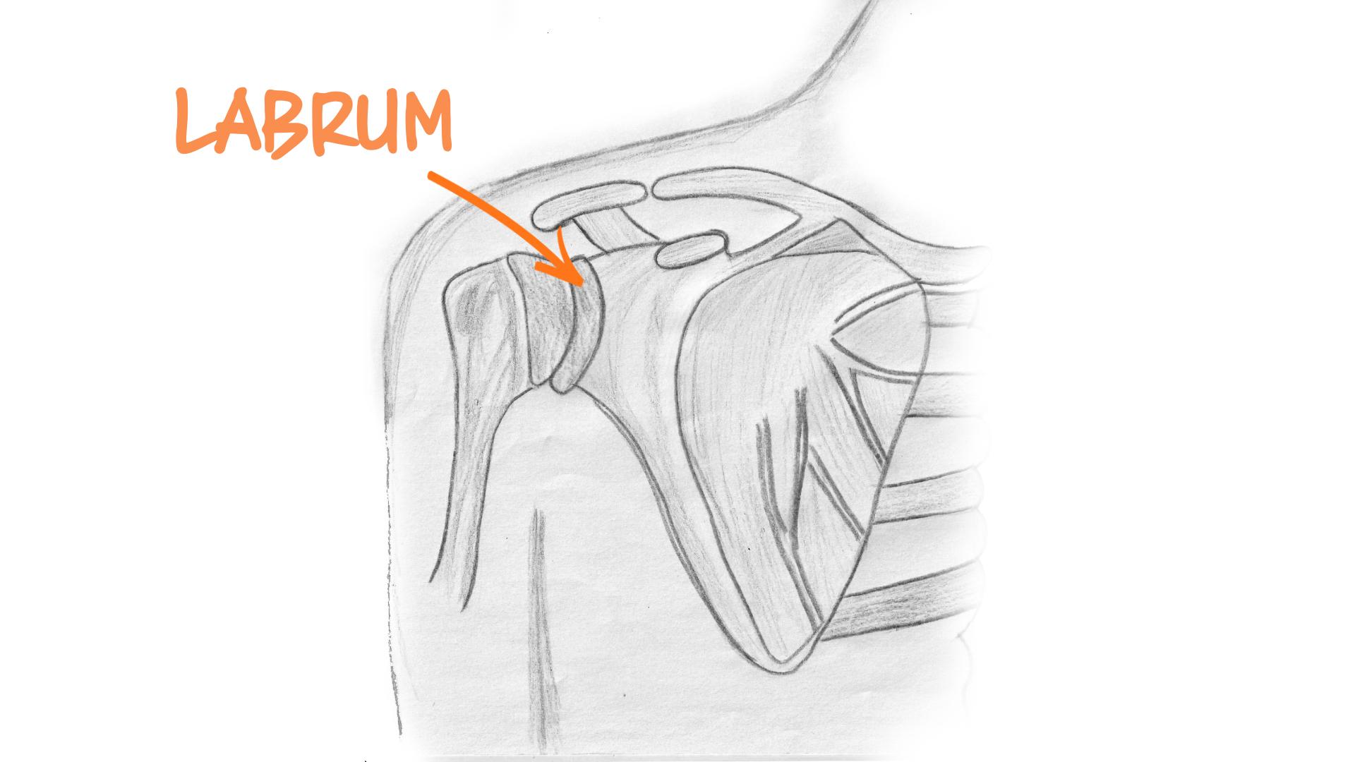medical illustration of a shoulder labrum tear