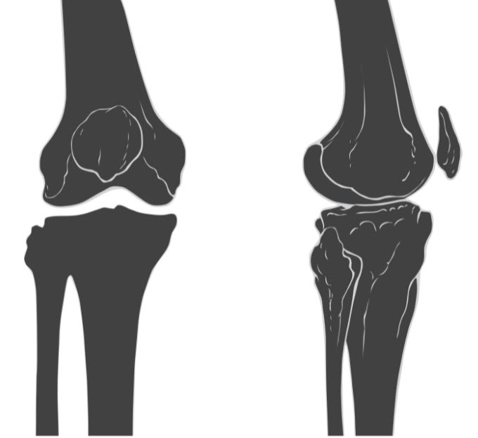 A medical illustration of lateral and TK interior views of a knee joint
