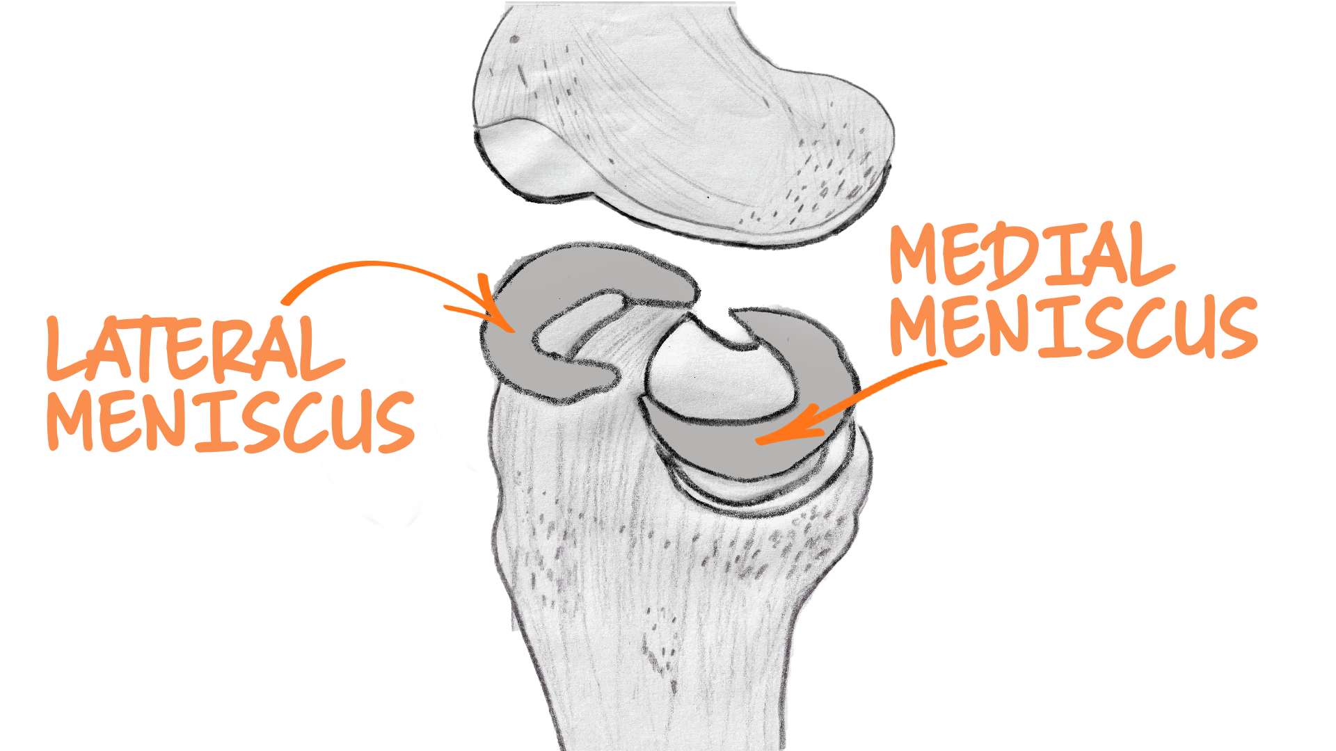 A medical illustration of lateral meniscus, medial meniscus, and cartilage