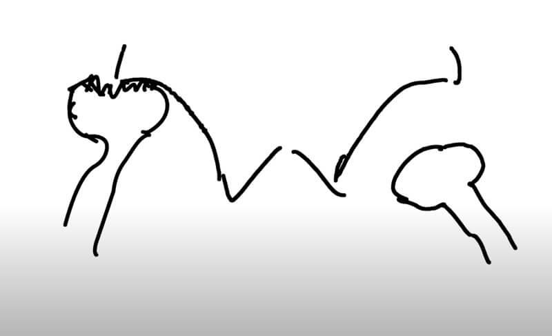 avascular necrosis drawing