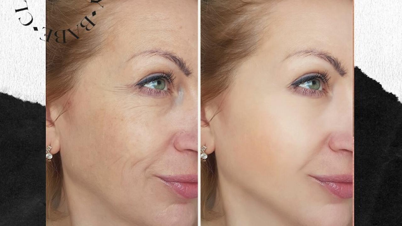 woman after fibroblast treatment
