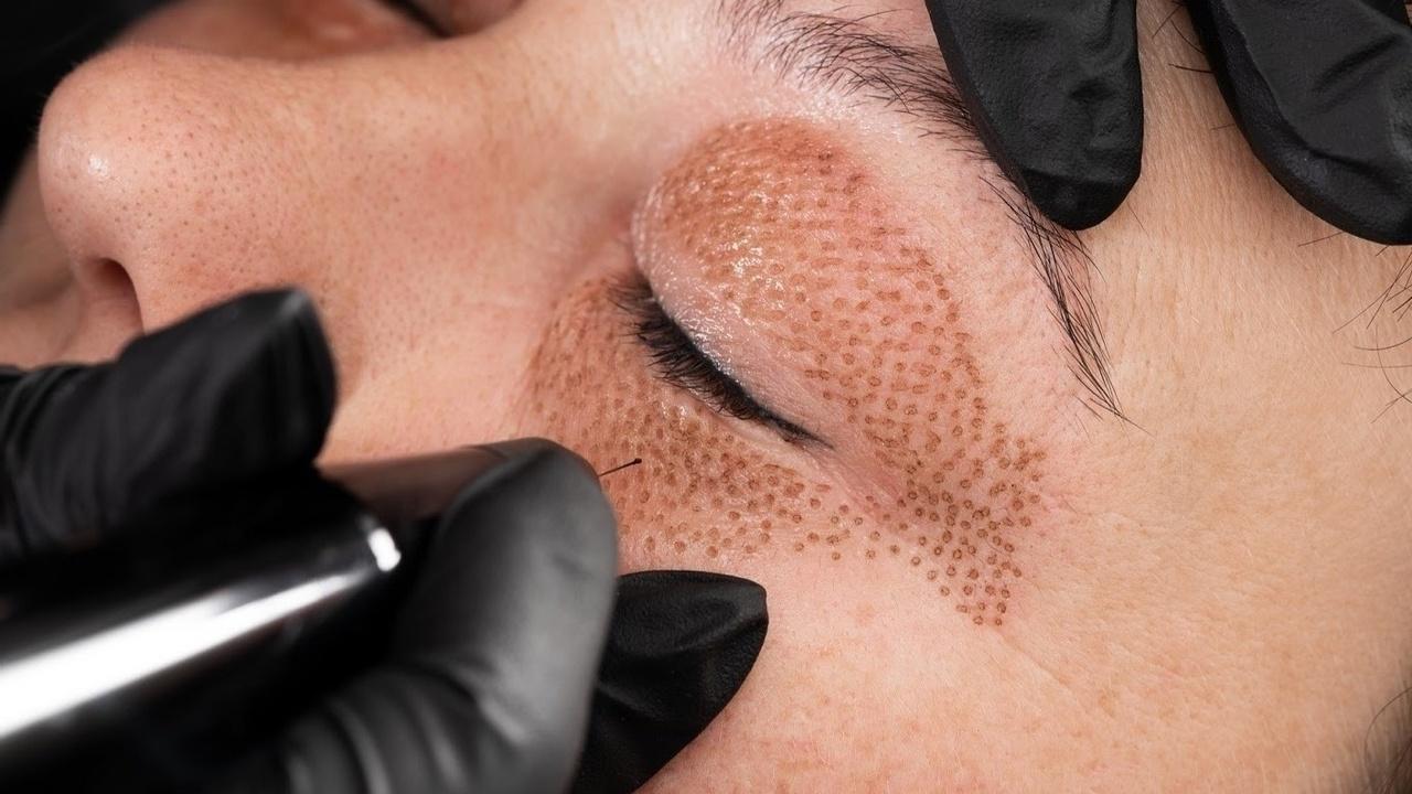 fibroblast-skin-tghtening-treatment