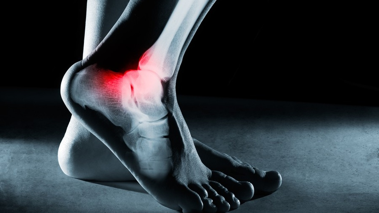 Foot and Ankle Injuries Often Lead to Chronic Pain