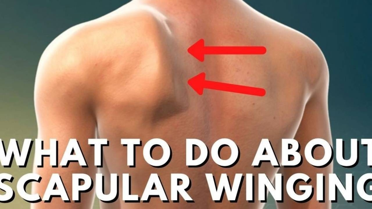 WHAT TO DO ABOUT WINGED SCAPULA