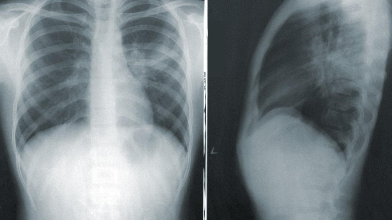 pijn op de borst, hartaanval, angina pectoris, vernauwing, hart- en vaatziekten