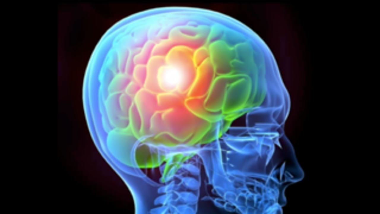 2uzf7ygxqh2b2ku4wfwa brain image