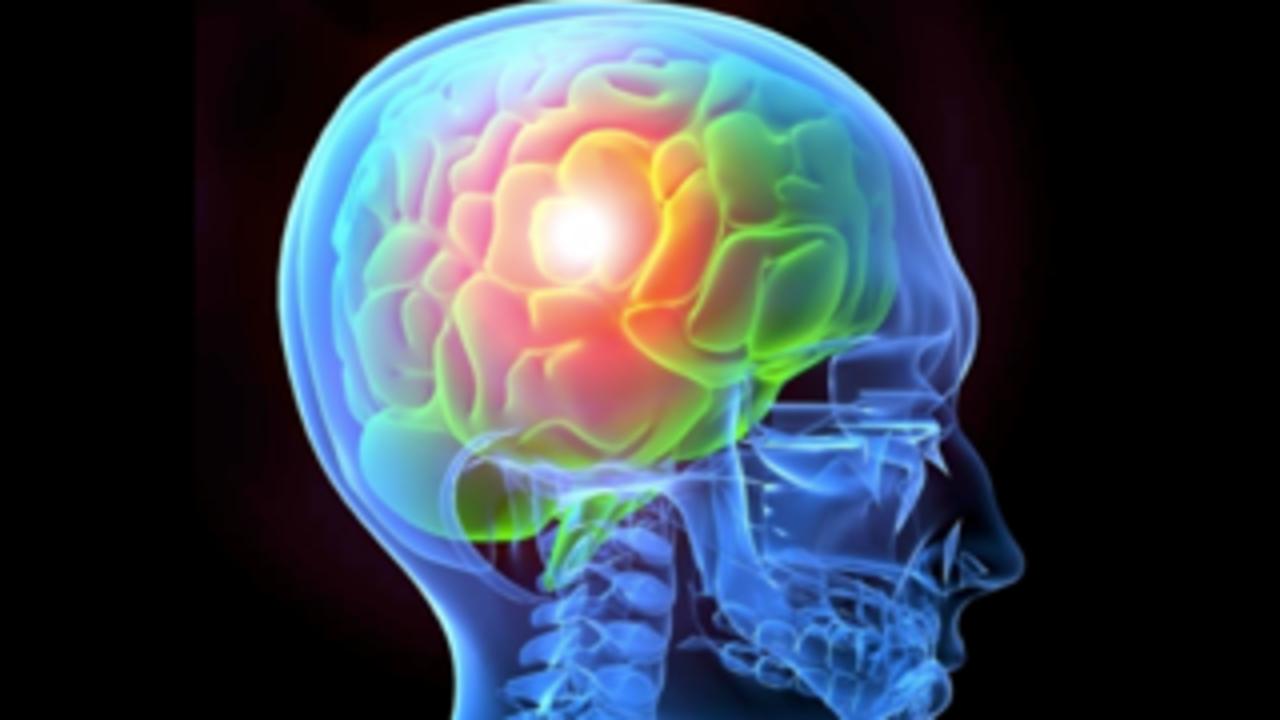 Ndjo2wbpq2ak1esznh8d brain image
