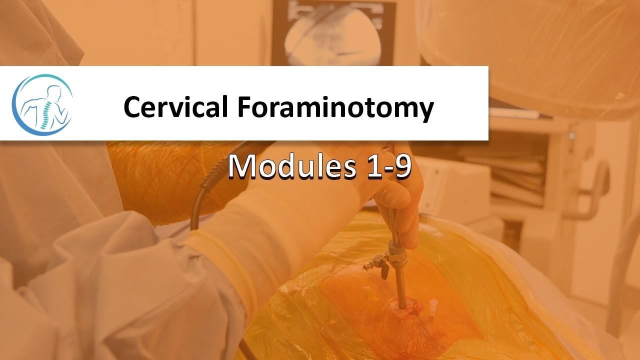 6ylqrbyitqedtwpxwg68 cervicalforaminotomy thumbnail
