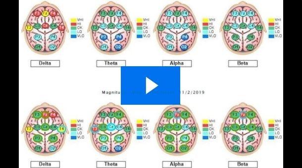 Braincore Neurofeedback and QEEG Brainmap