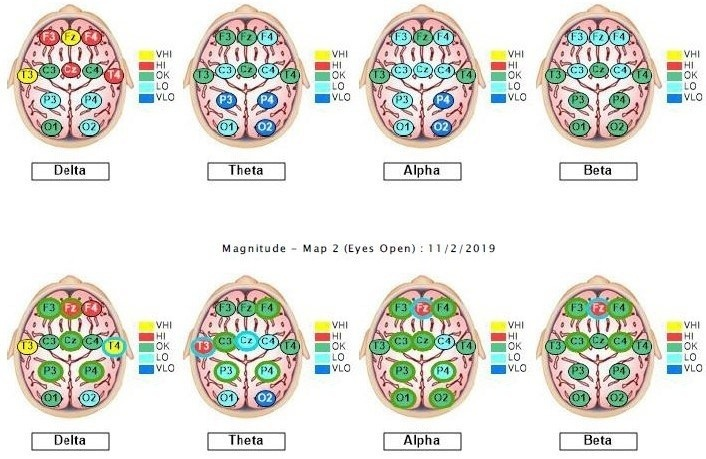 Braincore QEEG Brainmap