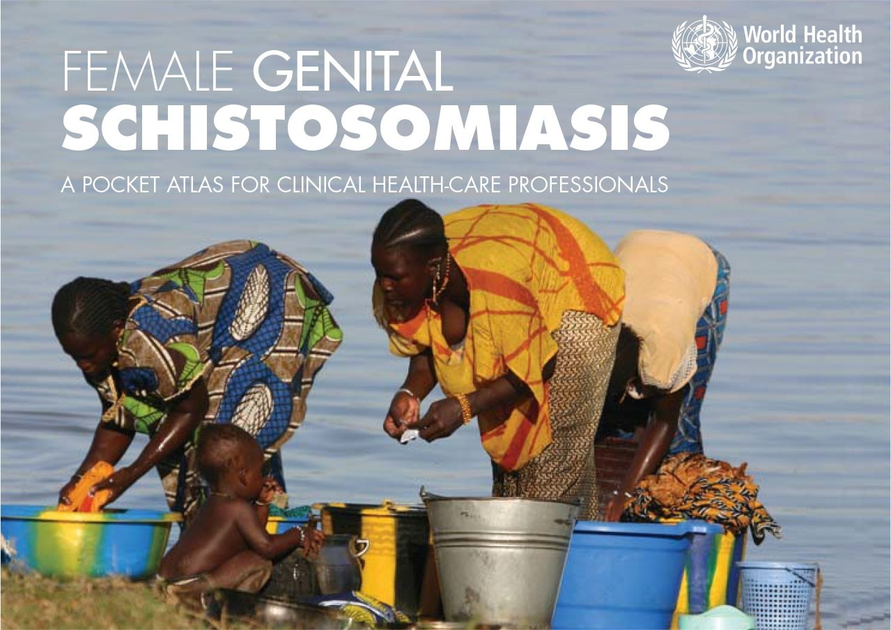 Female Genital Schistosomiasis: A Pocket Atlas for Clinical Health-care Professionals