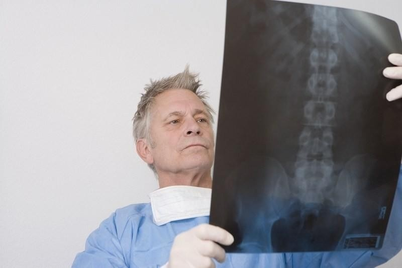 male chiropractor in blue scrubs looking at xray of spine