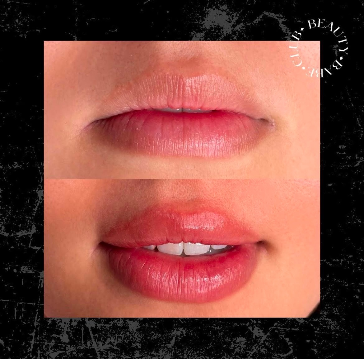 lip-blush-before-and-after