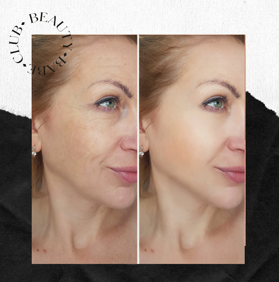fibroblast-before-and-after-results-face