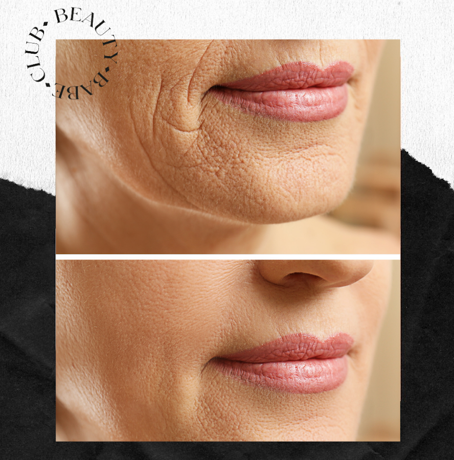 fibroblast-before-and-after-results-lips