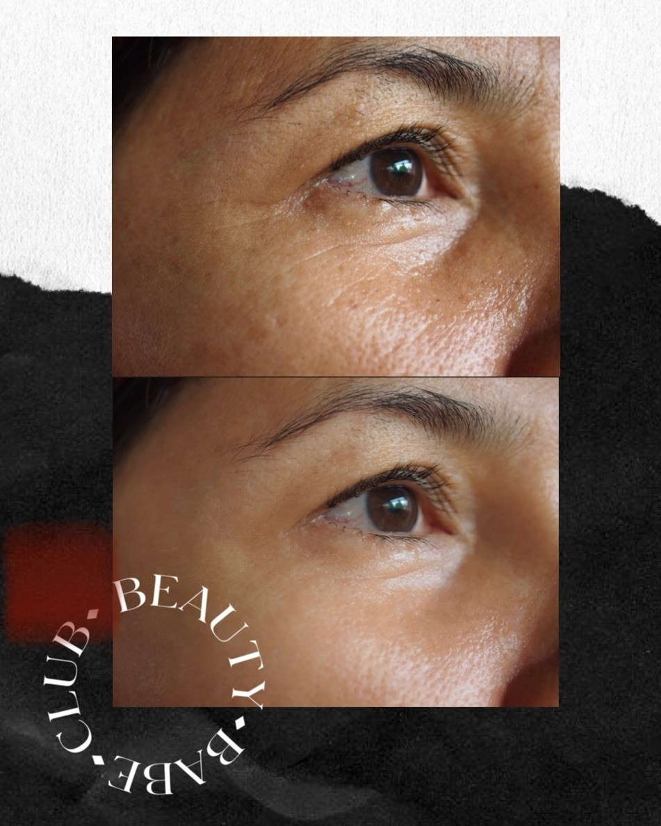 fibroblast-before-and-after-results-eyes