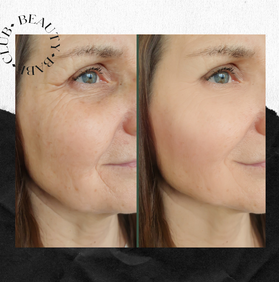 fibroblast-before-and-after-results-eyes-face