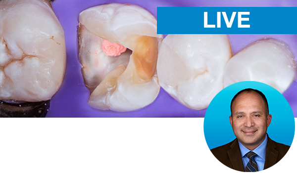Restoring the Endodontically-Treated Tooth With The Bioclear Method