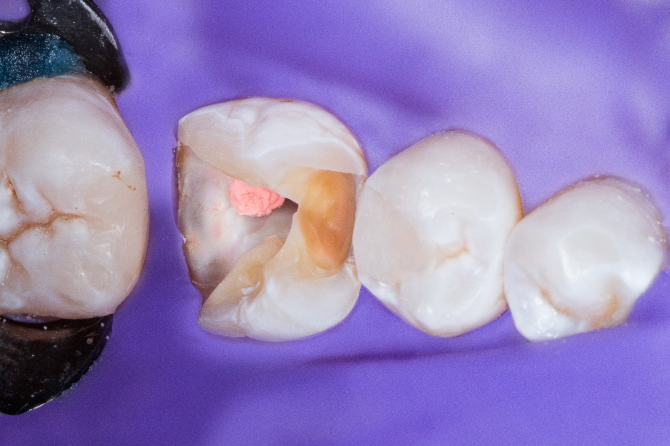 Beyond the Prep: An Efficient Method of Temporization Instructor: Chad C. Duplantis, DDS, FAGD