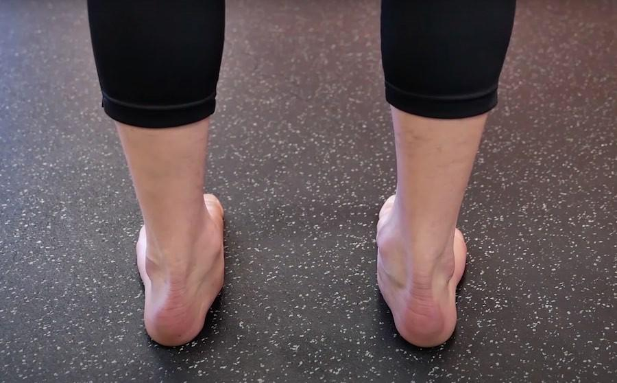 flat feet and collapsed ankles and foot pain