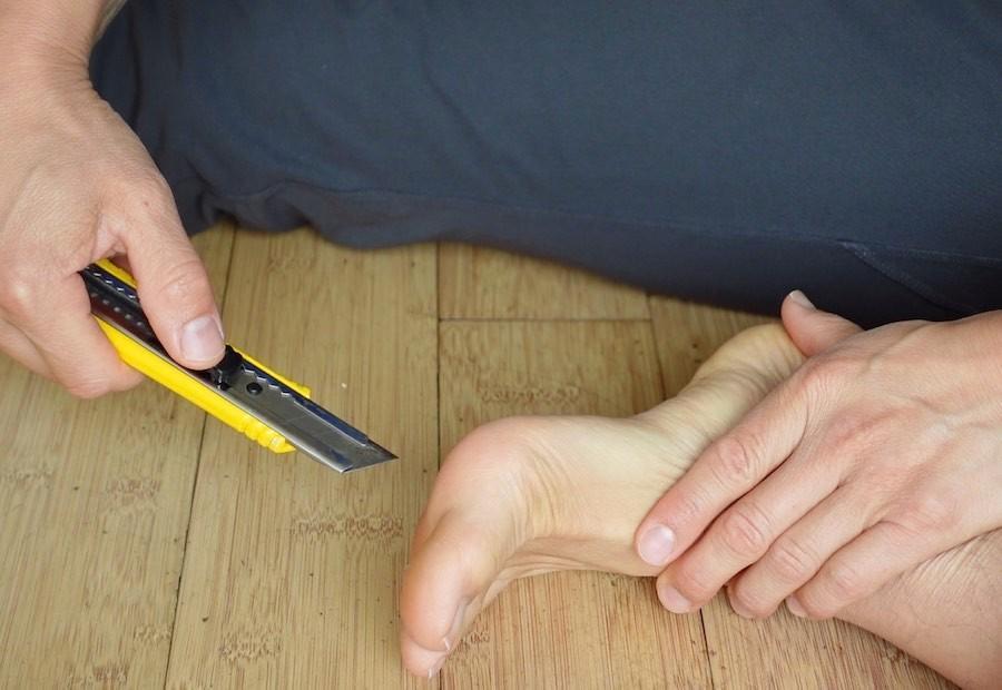 plantar fasciitis razor blades in foot