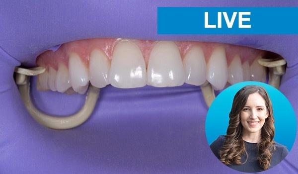 Tips & Tricks You WONT Learn In Dental School