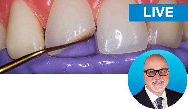 Mastering the Class IV restoration with Dr. Bob Margeas: Live
