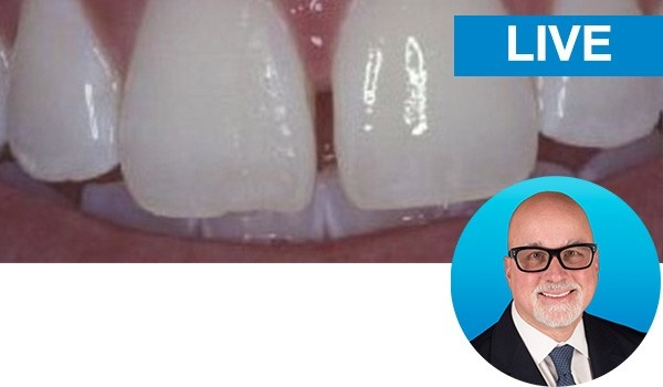 Freehand Diastema Closure with dr. Bob Margeas: Live