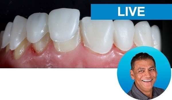 Restoring The Endodontically-Treated Tooth With The Bioclear Meth