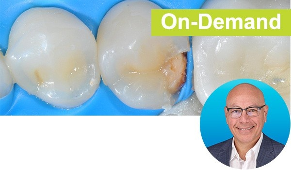 Bulk Fill Posterior Resin Composite Restorations Made Easy