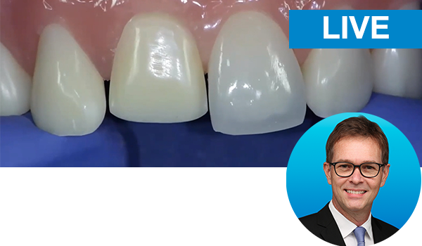 Direct-Indirect Composite Resin Veneer: with Dr. Newton Fahl live from Brazil