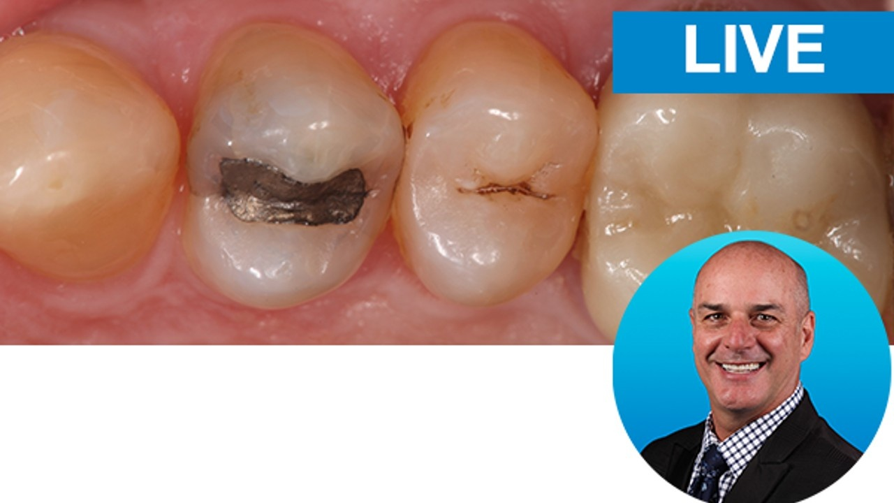 Beautiful Class V Restorations: Predictable and Modified