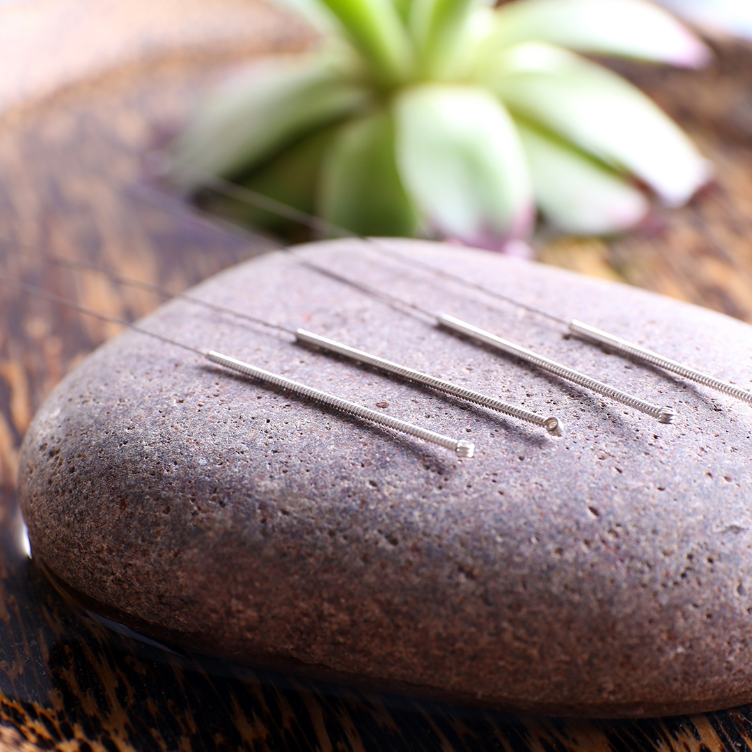 Acupuncture Services in Port Credit Mississauga, ON - pureBalance Wellness Cancer Care - acupuncture needles on a stone