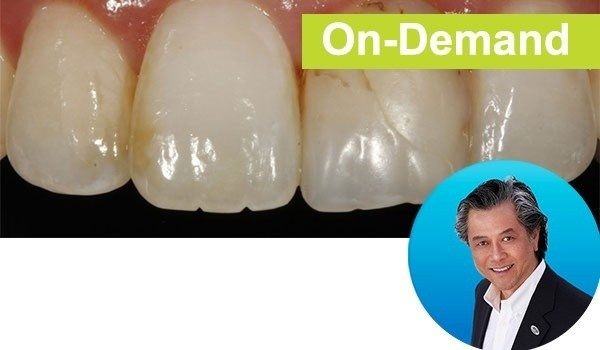 Simple Concepts to Shape & Polish Anterior Composites to Rival Porcelain Instructor: Dr. David Chan