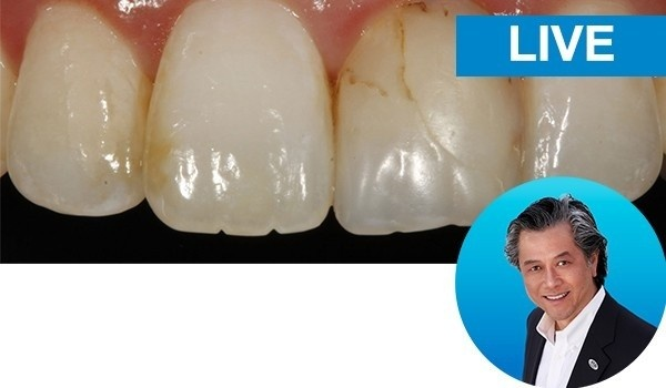 Simple Concepts to Shape and Polish Anterior Composites to Rival Porcelain