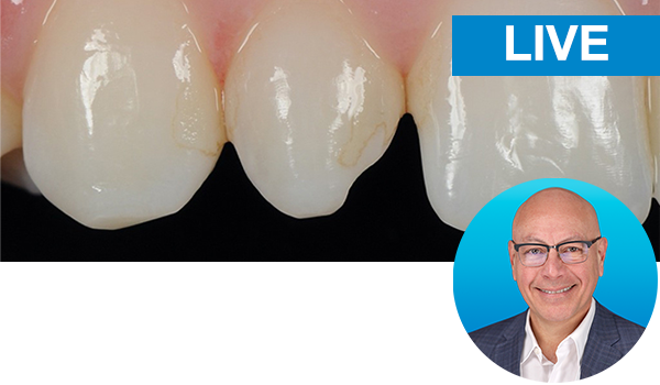 Esthetic Peg Lateral & Class III Direct Restorations Instructor: Dr. Marcos Vargas