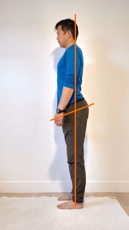 Example of anterior pelvic tilt side view