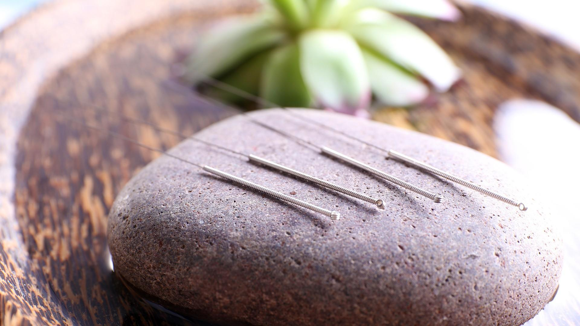 Acupuncture Services Mississauga -  pureBalance Wellness Cancer Care Mississauga