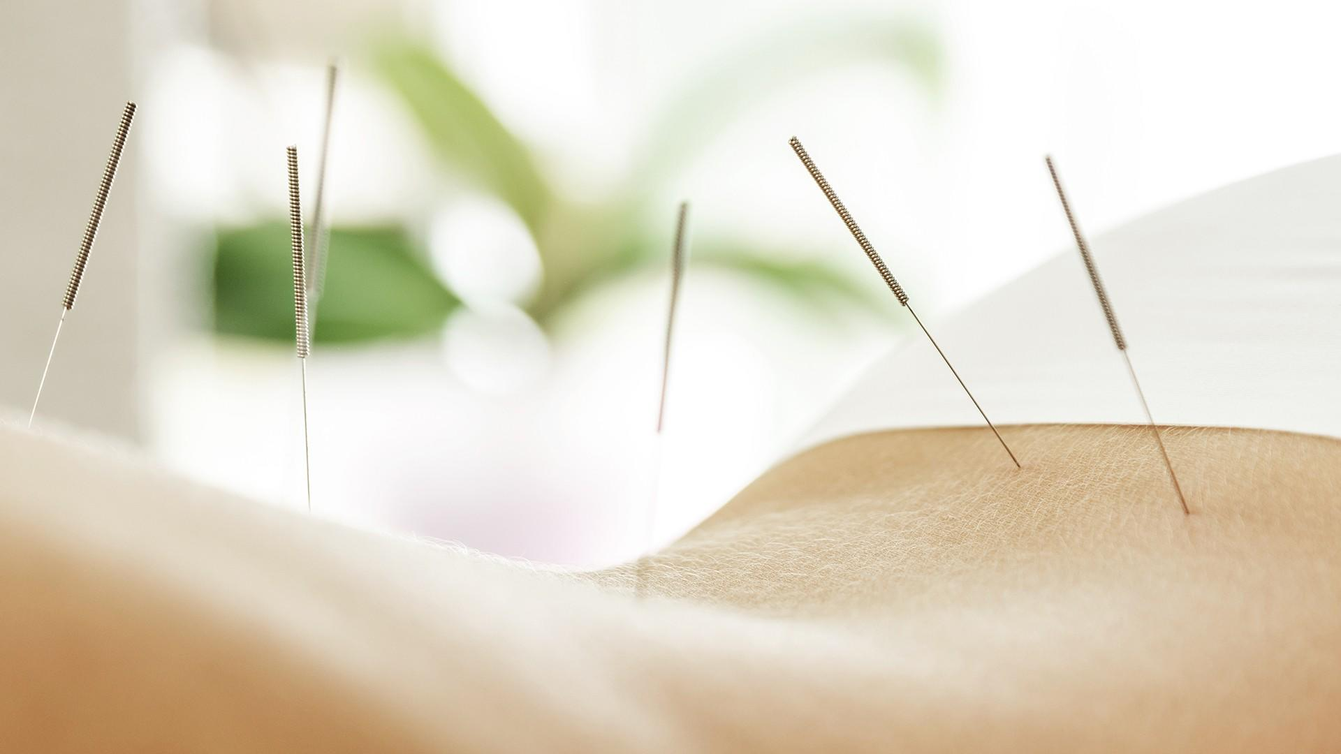 Acupuncture Services - Mississauga Port Credit at pureBalance Wellness Cancer Care