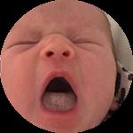 Breastfeeding Tongue Tie Thompson Method