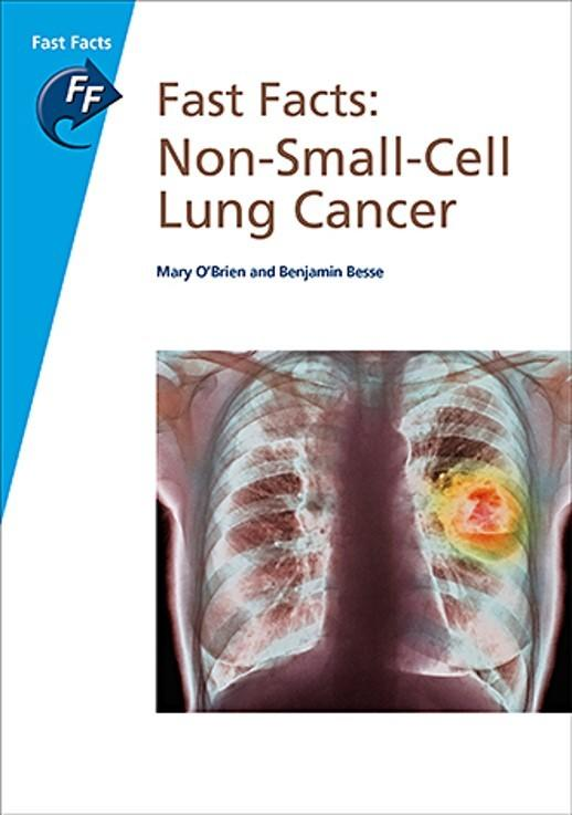 MSL disease test - NON-SMALL-CELL LUNG CANCER