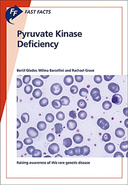 MSL disease test - PYRUVATE KINASE DEFECIENCY
