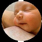 Thompson Method Breastfeeding Review Tongue Tie