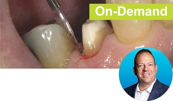 A Crash Course on Diode Lasers and Restorative Dentistry