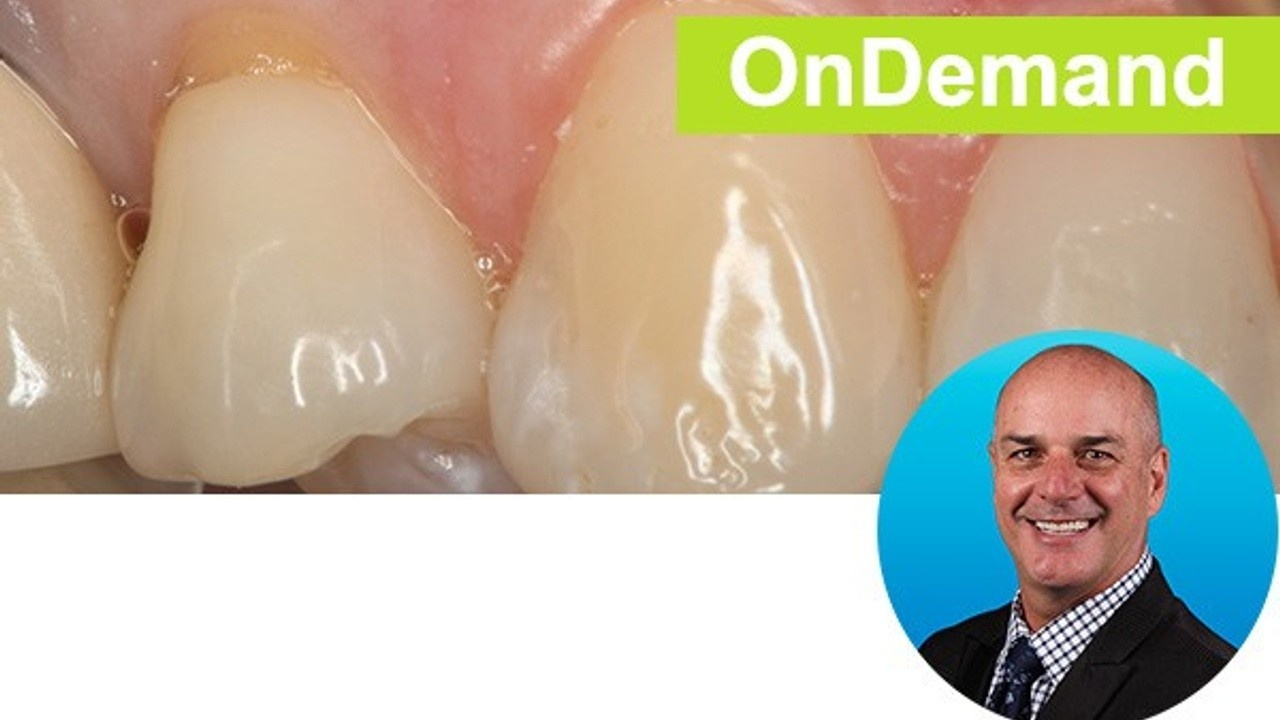 Beautiful Class V Restorations: Predictable and Simplified  Instructor: Dr. Marc Geissberger