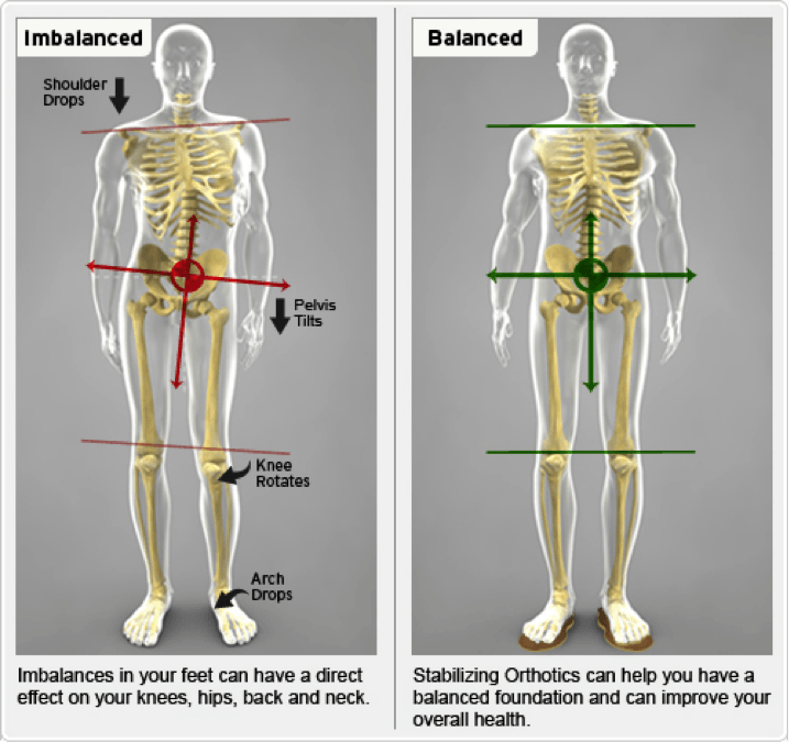 Orthotics at Pain Management Clinic